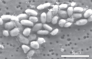 GFAJ-1 под микроскопом (space.com)